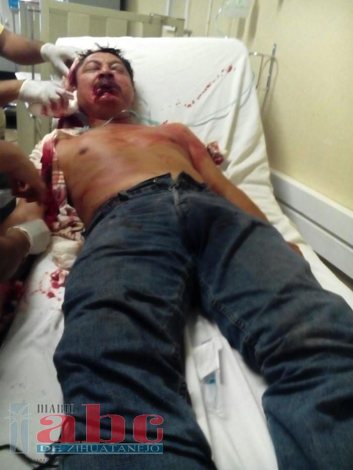 Hieren a balazo a un hombre en san Jerónimo cuando estaba parado en el sitio de  taxis