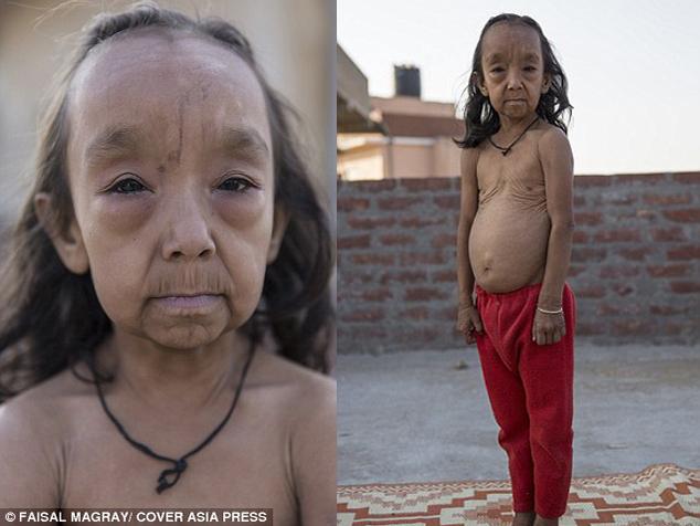 """La extraña enfermedad de """"Benjamin Button"""" afecta a estos menores"""