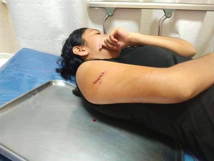 Photo of Hieren a boxeadora en intento de asalto; No participará en competencia en Acapulco